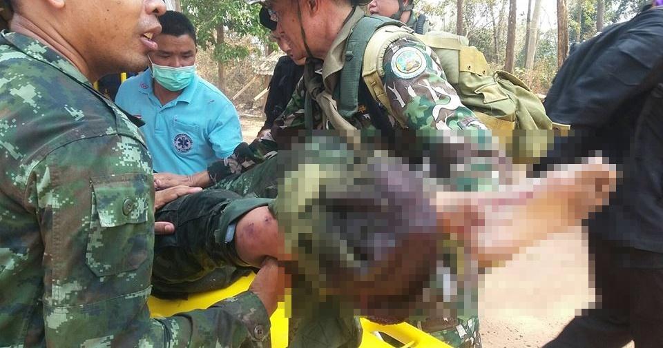 ชุดลาดตระเวนเหยียบกับระเบิด ป่ายอดโดม ลาดตระเวน เขตรักษาพันธุ์สัตว์ป่าภูหลวง
