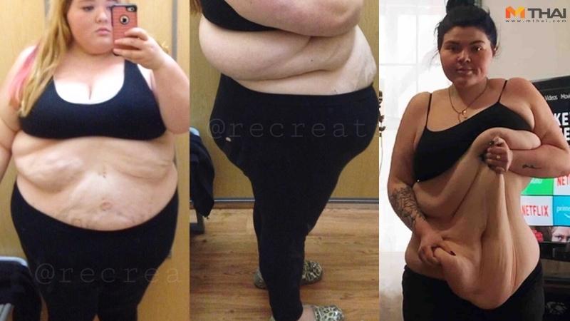 ผ่าตัดกระชับหน้าท้อง ลดความอ้วน ลดน้ำหนัก ศัลยกรรมหน้าท้อง สาวอ้วน