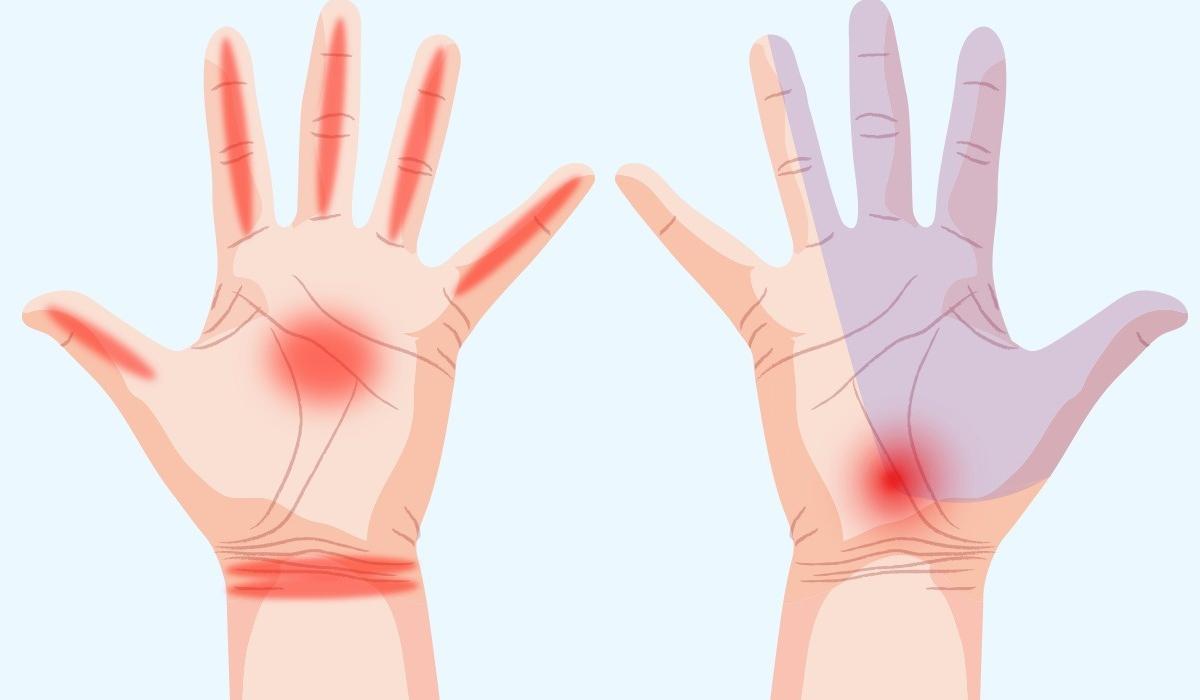 ปวดข้อมือ ปวดมือ อาการปวดมือ