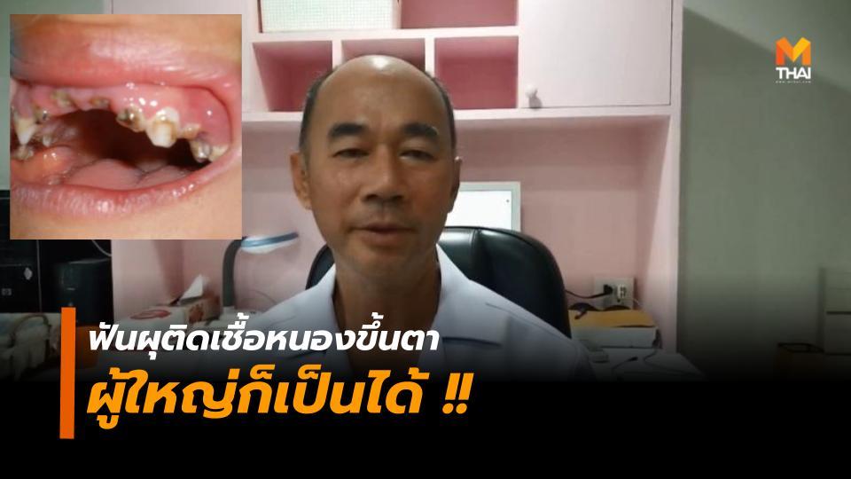 ฟันติดเชื้อ ฟันผุ หนองขึ้นตา
