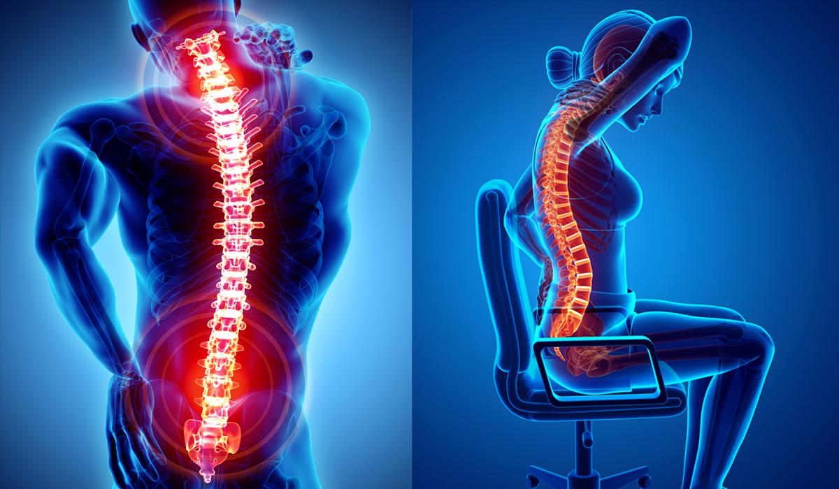 กระดูกสันหลัง กระดูกสันหลังคด กระดูกสันหลังทับเส้นประสาท กระดูกสันหลังมีกี่ชิ้น กระดูกสันหลังเสื่อม โรคกระดูกสันหลัง