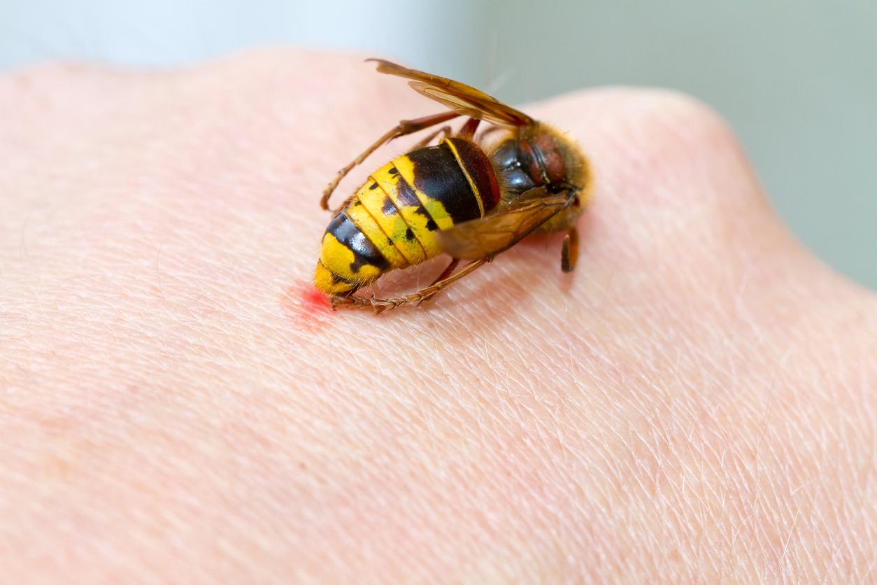 ปฐมพยาบาล ปฐมพยาบาลเบื้องต้น ผึ้ง ผึ้งต่อย วิธีปฐมพยาบาล วิธีปฐมพยาบาลเบื้องต้น