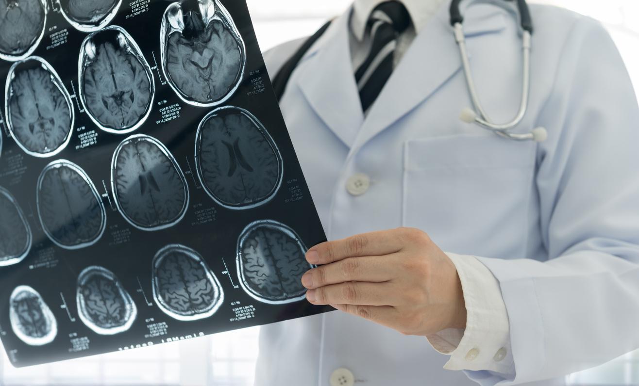 สาเหตุโรคหลอดเลือดสมอง หลอดเลือดสมอง โรคหลอดเลือดสมอง โรคหลอดเลือดสมองตีบ