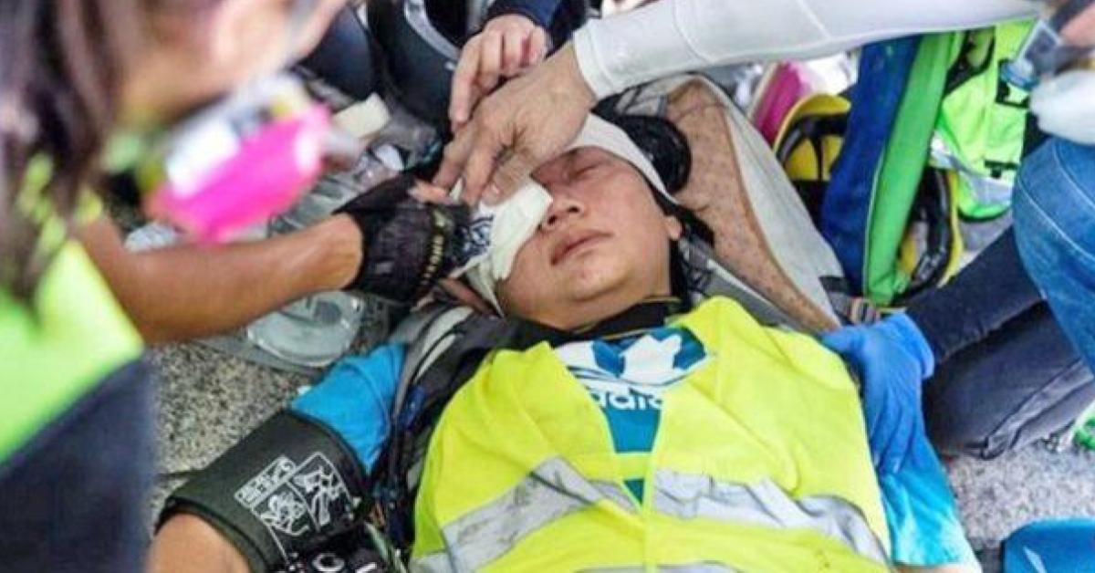 ตาบอด ประท้วง ยิงนักข่าว ฮ่องกง