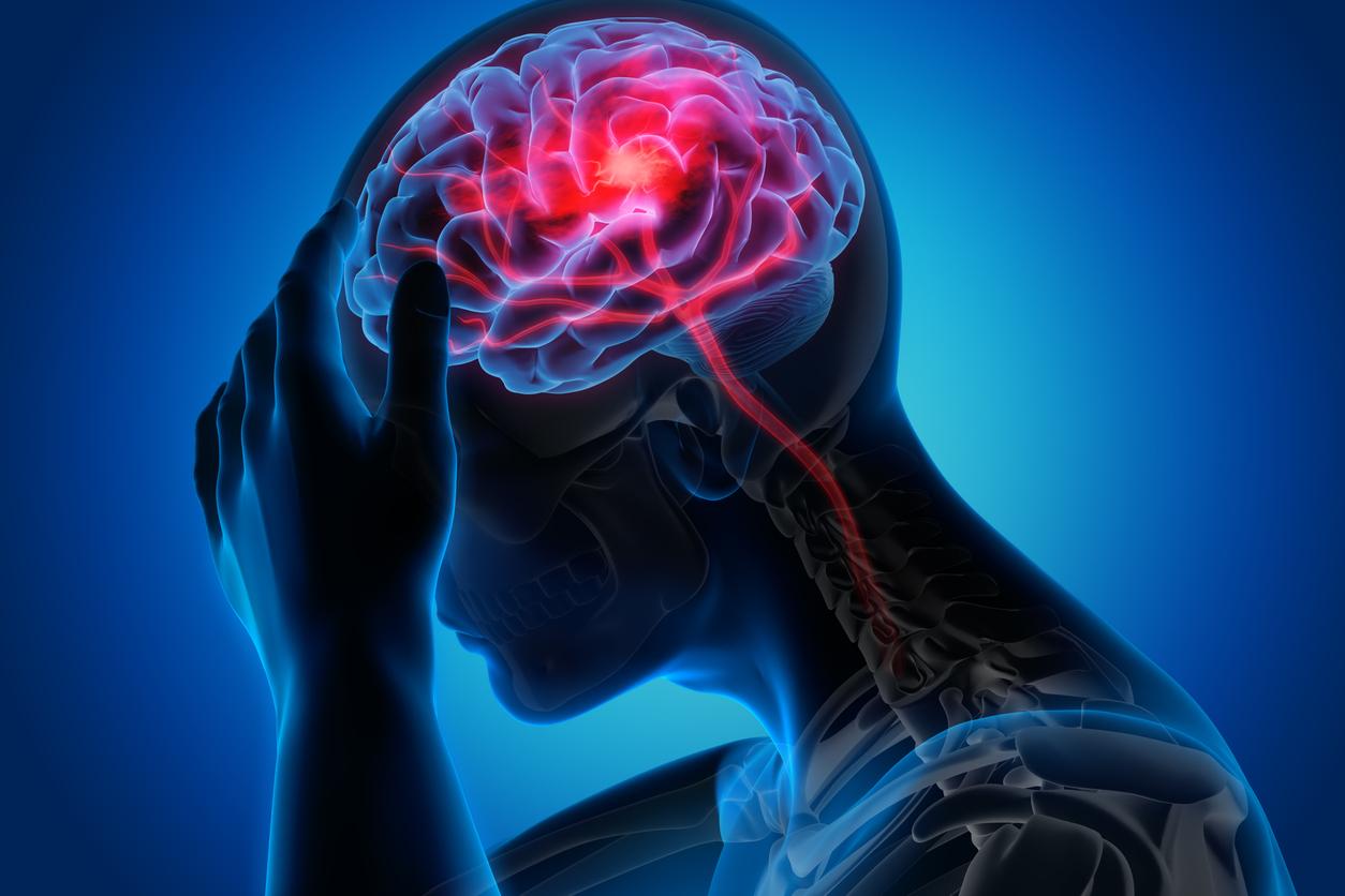 การป้องกันโรคหลอดเลือดสมอง โรคหลอดเลือดสมอง