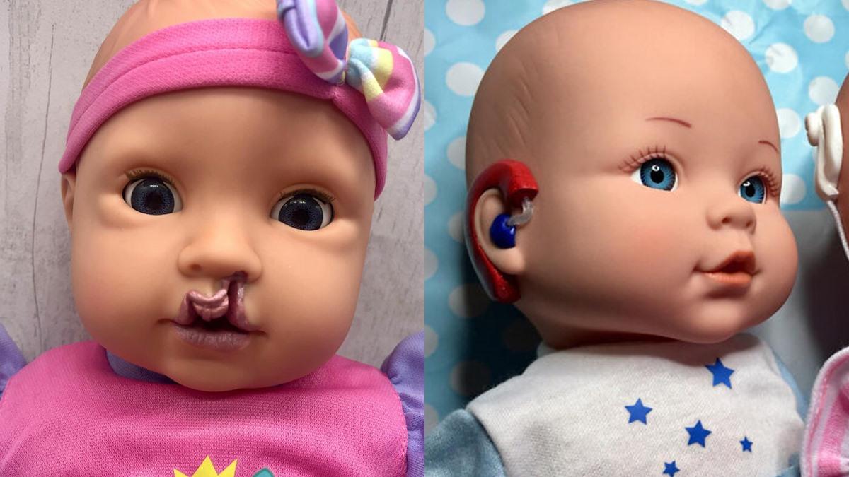 คุณแม่ลูกหนึ่ง ดัดแปลงตุ๊กตา ตุ๊กตา พิการแต่กำเนิด ลดปมด้อย