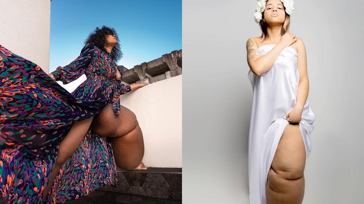 ขาบวมน้ำเหลือง ขาบวมใหญ่ ขาใหญ่ ผู้หญิงขาใหญ่ ผู้หญิงต้นแบบ ผู้หญิงป่วย
