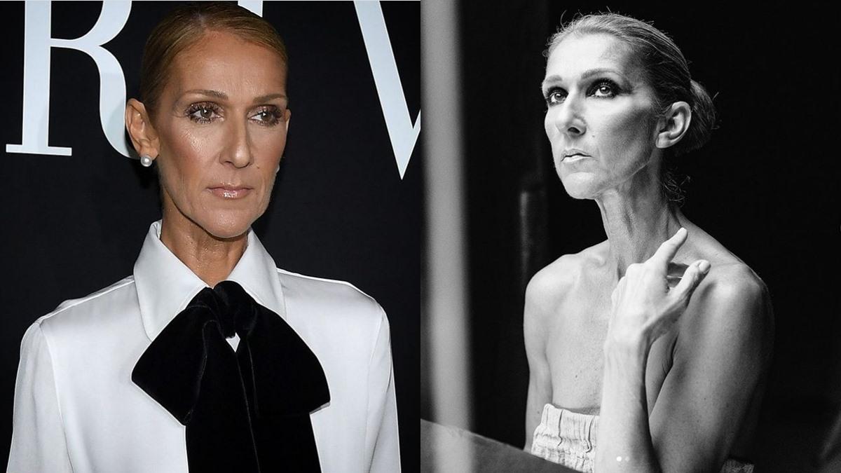 body shamed Celine Dion คลั่งผอม ลดน้ำหนัก อาหารลดน้ำหนัก